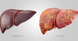 أخطرها مرض السكري.. أسباب دهون الكبد .. شاهد
